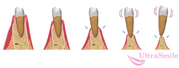 4 стадии атрофии