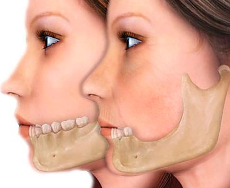 Атрофия костной ткани челюсти: что это такое?