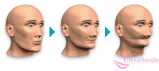 изменение лица