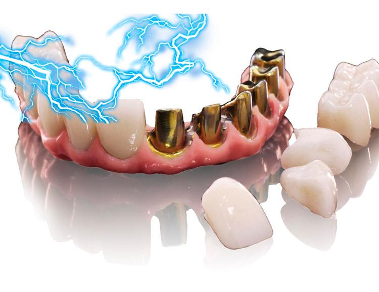 8 интересных фактов про гальванизм (гальваноз) полости рта