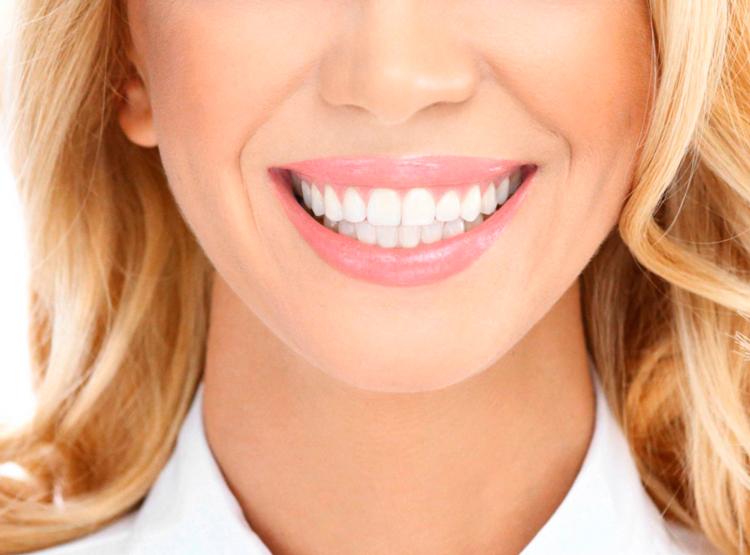 Ламинирование зубов: ответы на актуальные вопросы