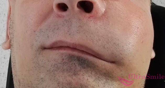 опухла щека