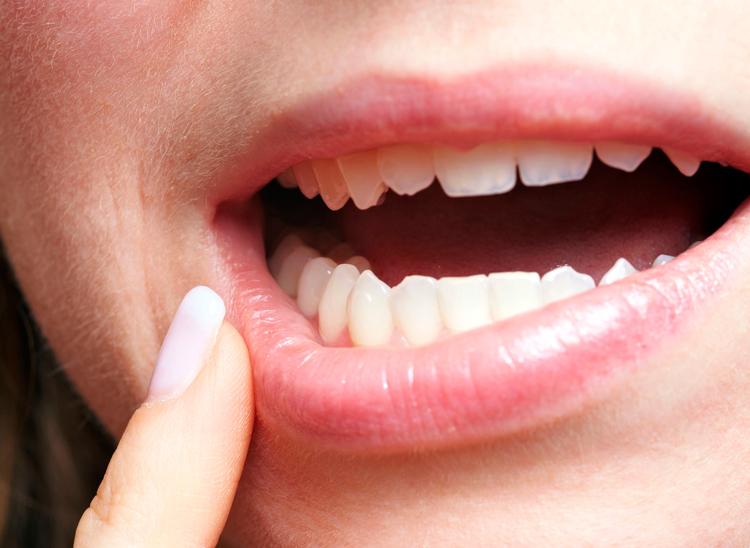 Как называется белая болячка во рту: 6 наименований, о которых вы могли не знать