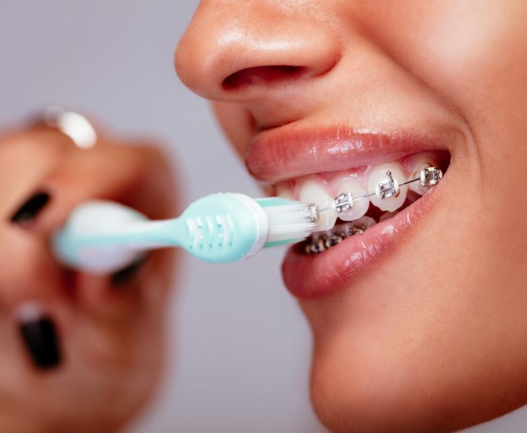 Как и чем чистить зубы с брекетами: советы ортодонтов