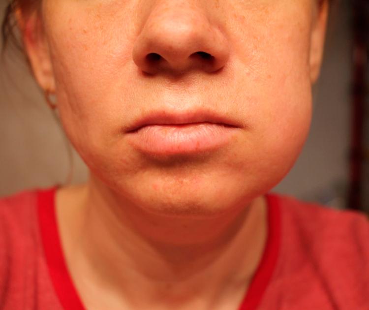 Как избежать отека после имплантации зубов: советы врачей