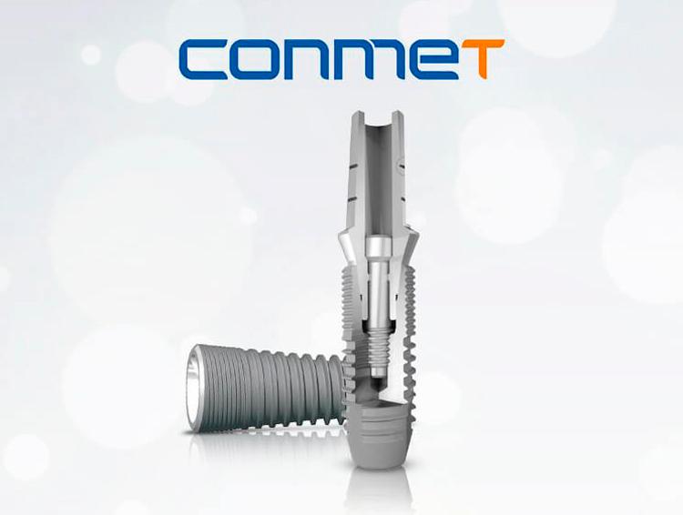 8 особенностей российских имплантов Conmet («Конмет»): обзор бренда