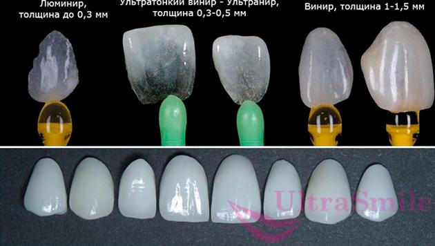 Виды накладок на зубы