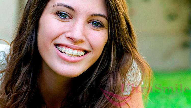 8 фактов про безлигатурные брекеты