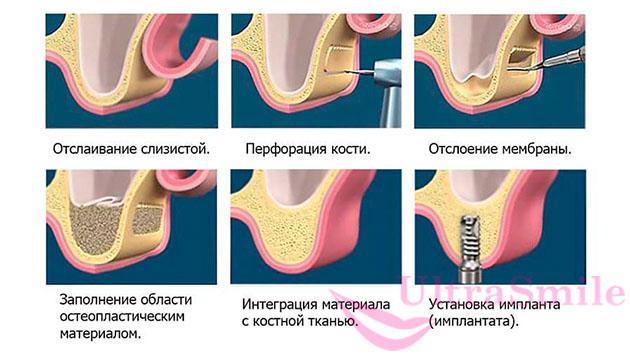Описание процедуры синус-лифтинга