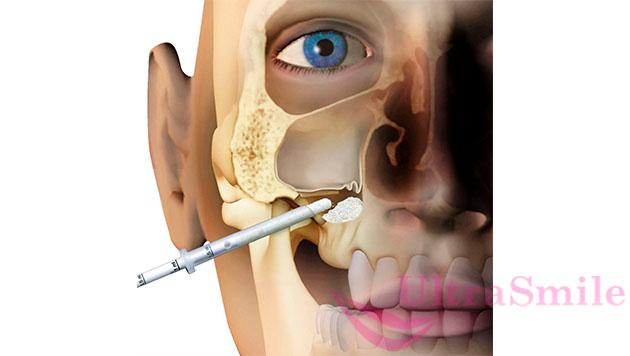 Суть операции - с помощью вмешательства приподнять дно пазухи на необходимое расстояние и заполнить образовавшееся пространство костной крошкой