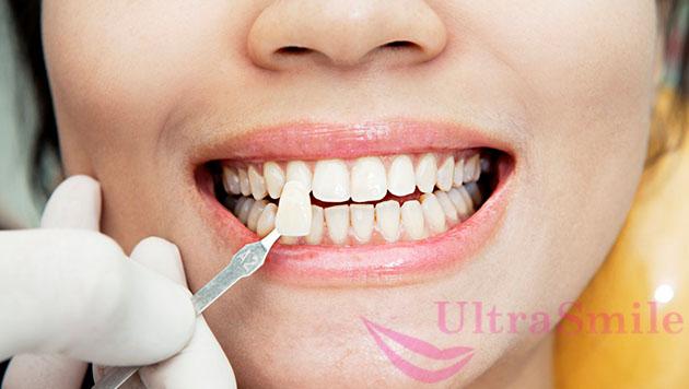Получить красивую улыбку помогают стоматологи-ортопеды, устанавливающие на зубы виниры или люминиры.