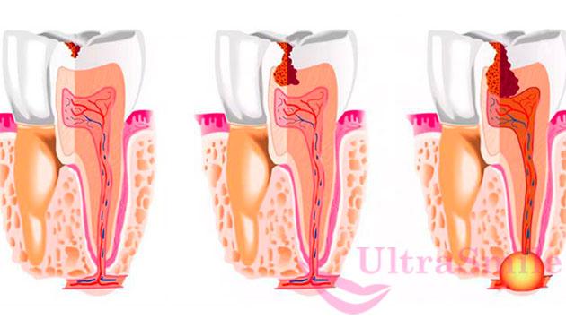 В недопломбированной части развивается инфекция, происходит формилование кист и гранулем