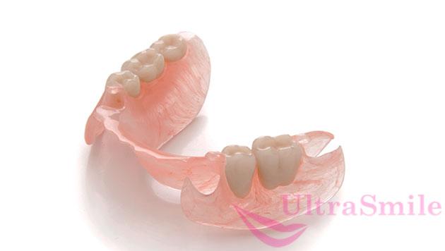 Удаление зубов и их потеря по любым причинам, повод обратиться к врачу ортопеду