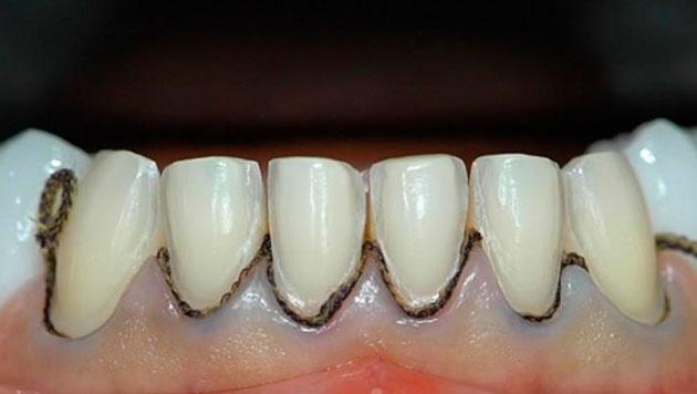 Ретракционные нити используются для процедуры ретракции десны.