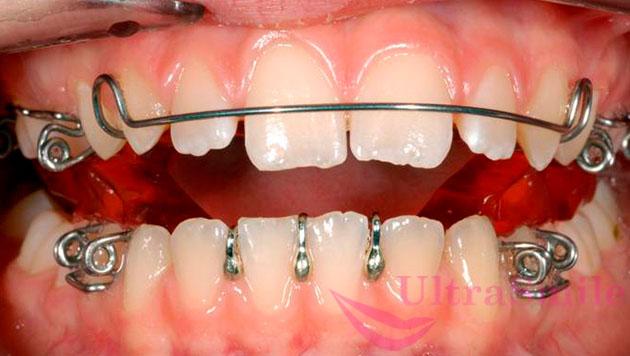 Cкобы на зубах призваны корректировать патологии прикуса, выравнивать ряд