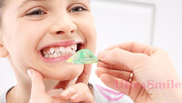 Cкобы на зубы, которые в любой момент можно извлечь изо рта и надеть снова